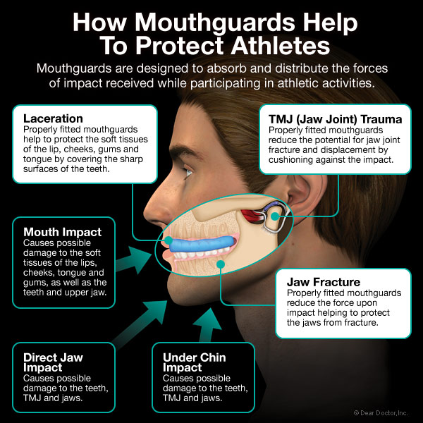 How custom fitted mouthguards protect athletes?